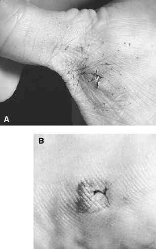 9Mm Bullet Wound - Bing images