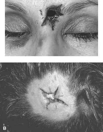 Caliber Hollow Point Head Wounds