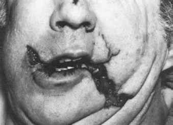 Gunshot Wounds The Mouth